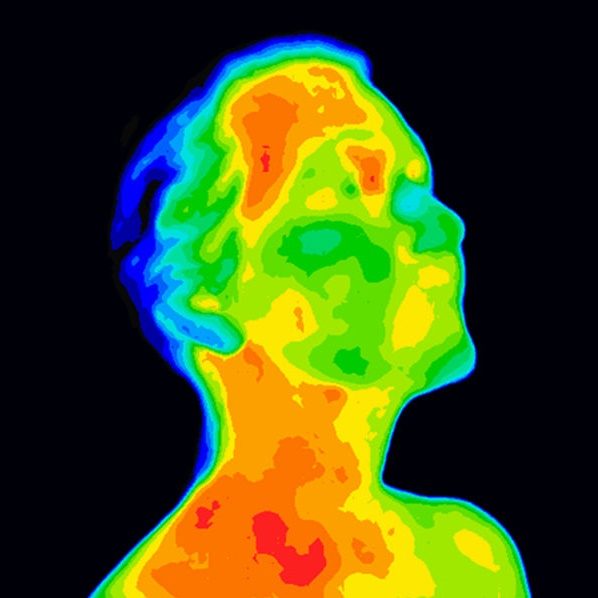 Thermographic image of a human face and neck showing different temperatures in a range of colors from blue cold to red hot. Red in the neck might indicate raised CR-P levels, this could be a sign of inflammation, and Carotid Artery inflammation which could be linked to a stroke.
